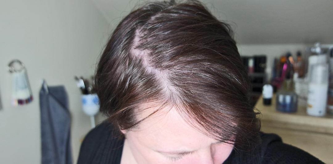 En vanlig dag med grått hår